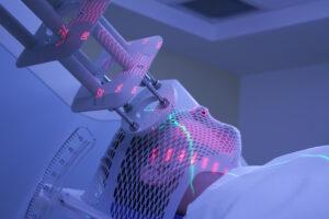 radiation, therapist, immobilisation, duration