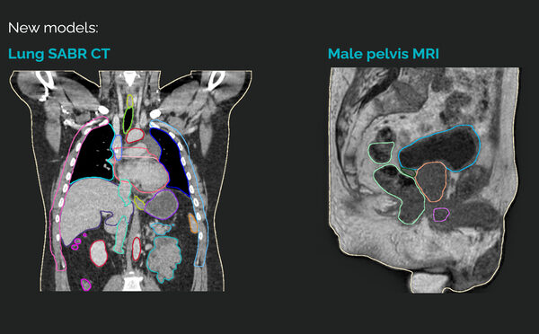 MVision's AI segmentation service has been updated and now supports new Lung SABR protocol and MRI Male Pelvis protocol MR-only workflow